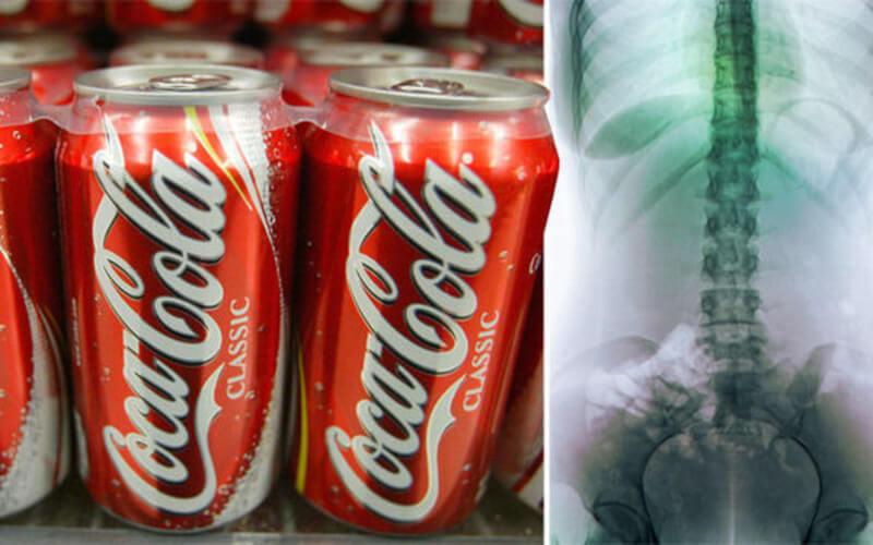 Les boissons gazeuses légères causent de graves problèmes de santé