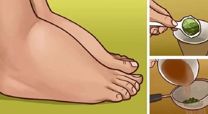 5 problèmes de santé à l'origine des chevilles gonflées, comment les guérir