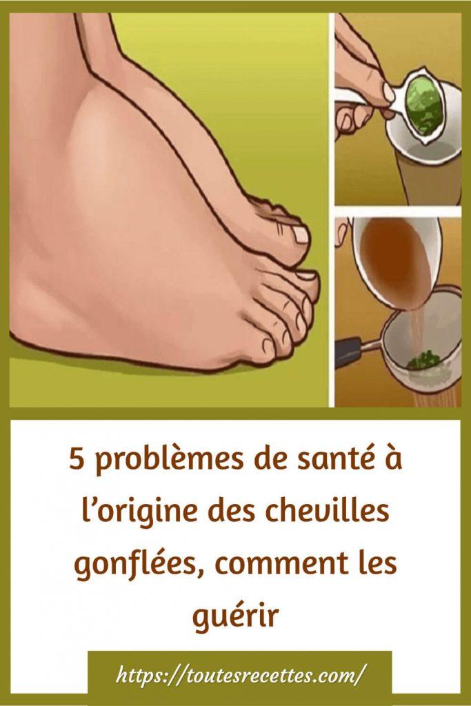 Comment préparer le Remède naturel contre l'enflure des chevilles et des jambes