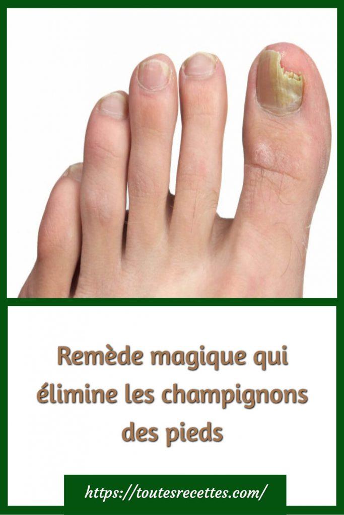 Remède magique qui élimine les champignons des pieds