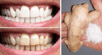 Gingembre, sel permettent de blanchir les dents comment les utiliser